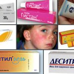 Какая детская мазь от аллергии самая лучшая?