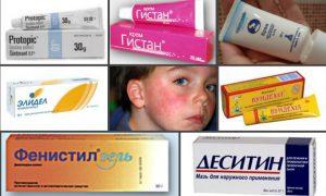 Мазь от аллергии у детей