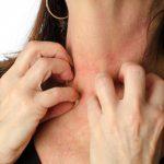 Какие антигистаминные препараты помогают при аллергическом дерматите?