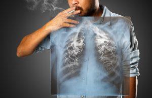 Курение легкие