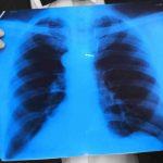Чем очистить организм после отказа от курения