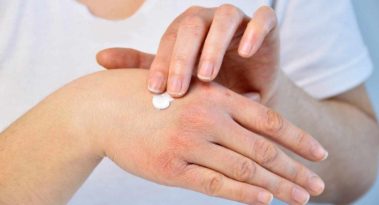Лосьон от атопического дерматита