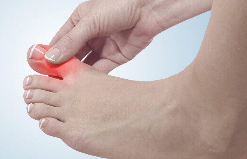 Болит косточка на пальце
