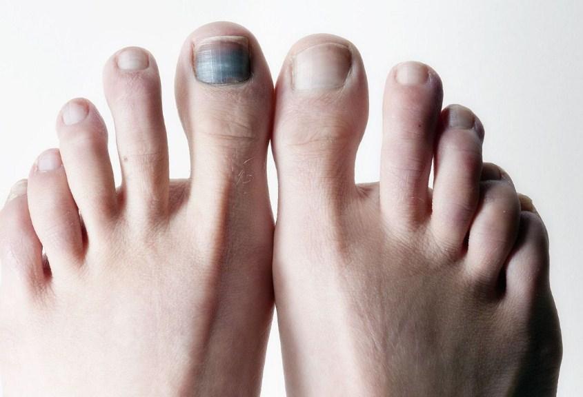 Посинение ногтей