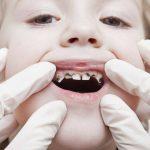 У ребенка потемнела эмаль зубов - как безопасно отбелить?