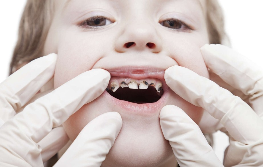 Темные зубы у ребенка