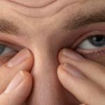Синдром сухого глаза - препараты