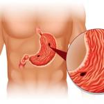 Правильная терапия при язве желудка