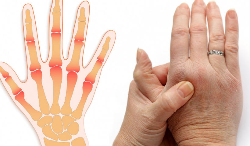 Болят суставы пальцев