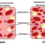 Что делать, если понижены эритроциты в крови?